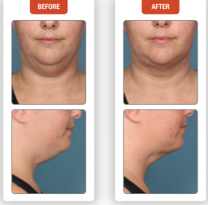 Before & After Photos of Non-surgical Neck Fat Removal With Kybella®