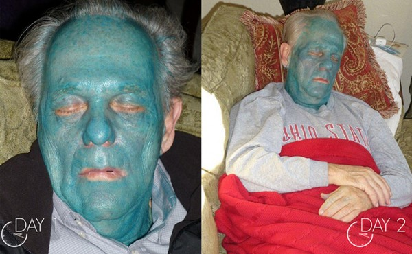 Day 2 after getting Obagi Blue Peel