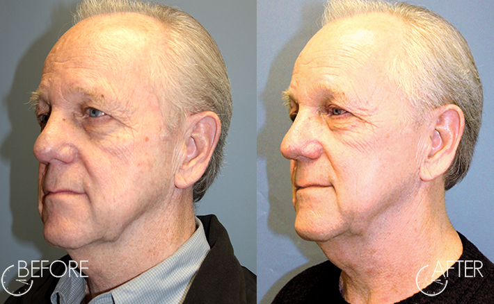 Day 1 after getting Obagi Blue Peel