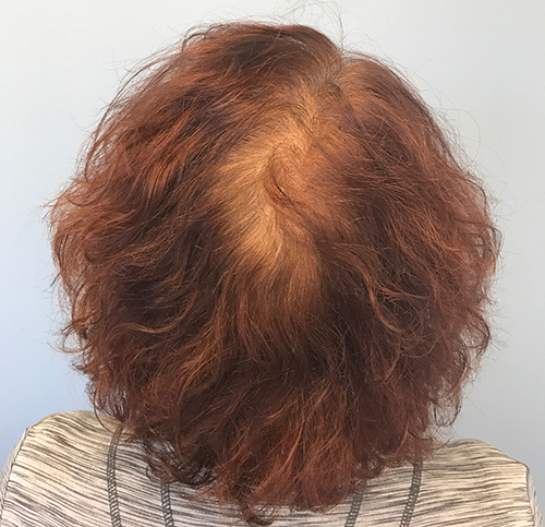 PRP Therapy for Hair Restoration Before Photo