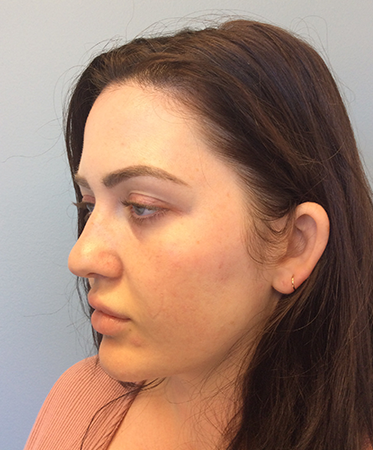 Pen Microneedling After Photo