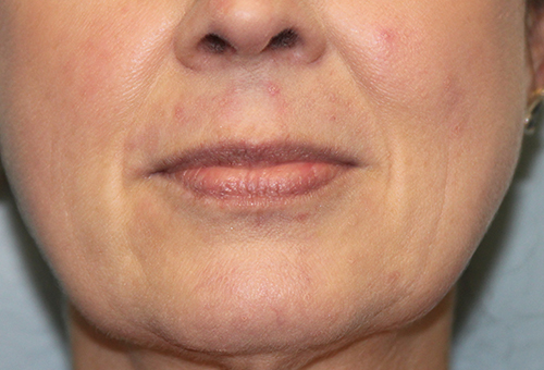 Juvederm Ultra XC Patient 27168 Before Photo