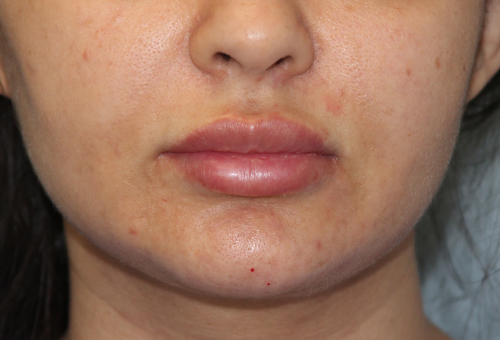 Restylane Patient 29618 After Photo