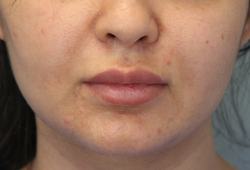 Restylane Patient 29618 Before Photo